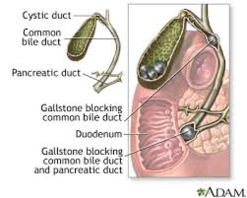 Managing Gallstones - By Dr. Atul Sharma | Lybrate