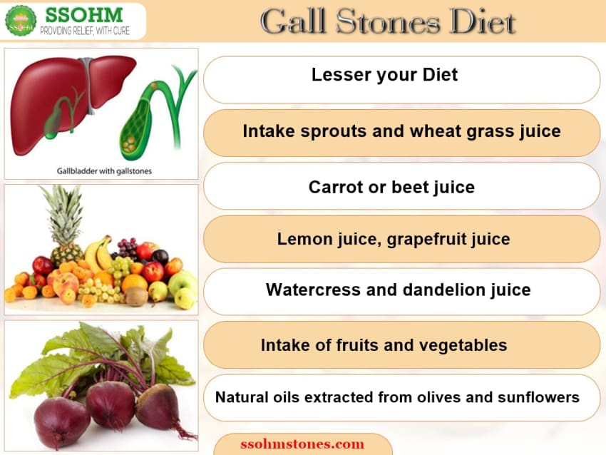 Know More About Gallbladder Stones By Dr R K Aggarwal Lybrate