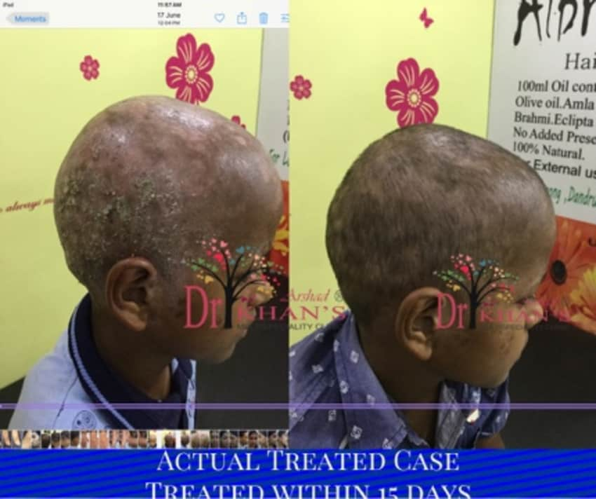 scalp infection treatment natural