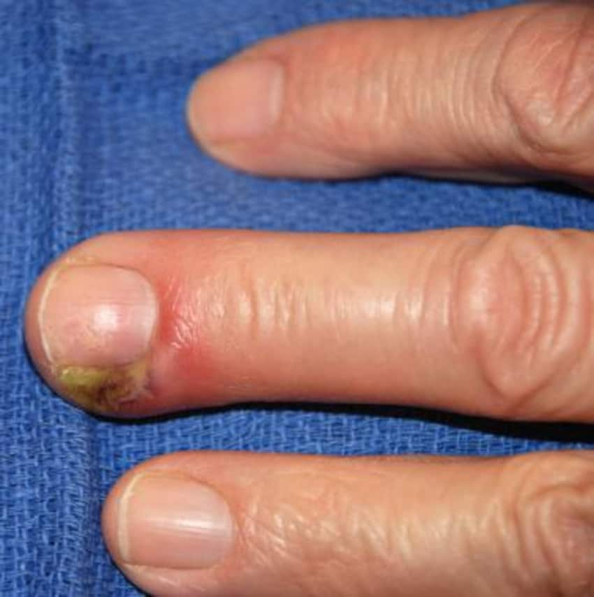 Nail Bed Infection - By Dr. Gaurav Bansal | Lybrate