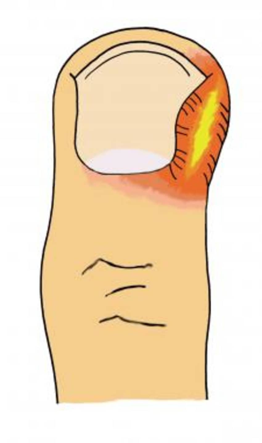 Nail Bed Infection - By Dr. Gaurav Bansal   Lybrate