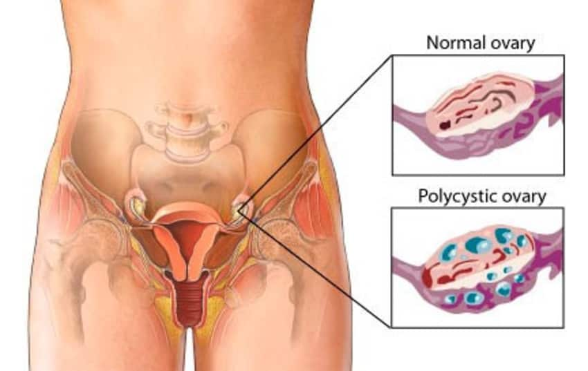 after polycystic Pain sex