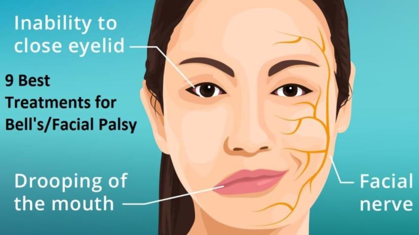 Bells palsy facial neuralgia