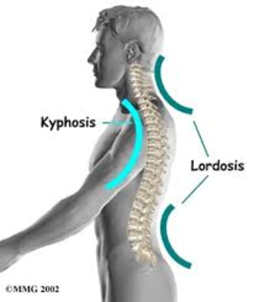 What is lordosis 39