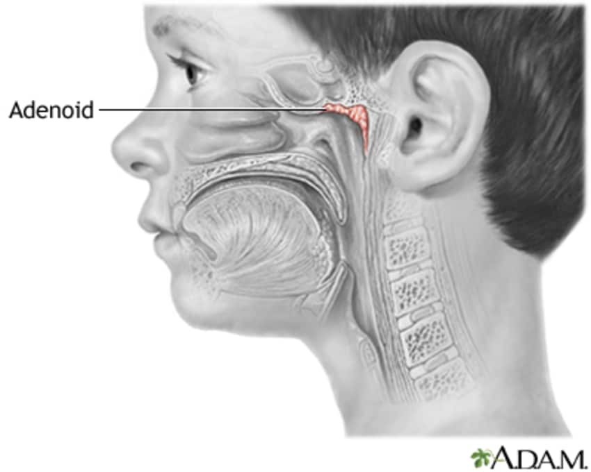 Adenoids Causes And Treatment By Dr Prachi Goel Lybrate