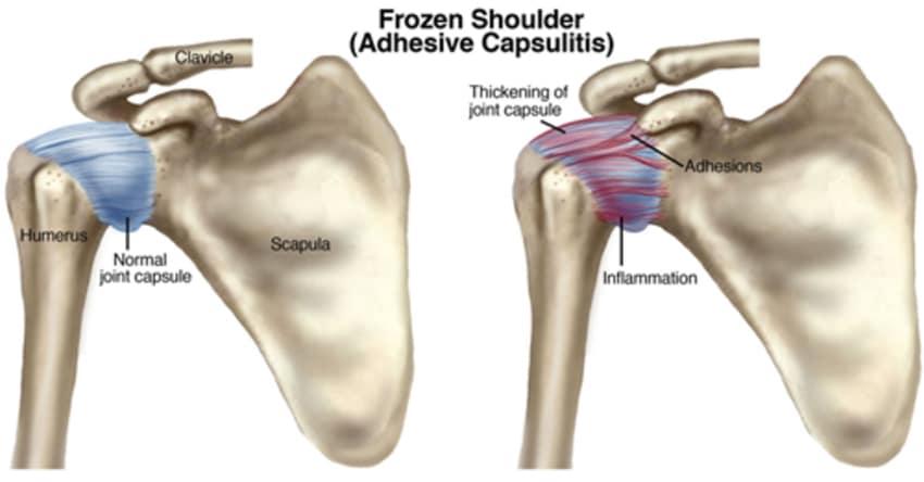 Frozen Shoulder By Dr N C Gupta Lybrate
