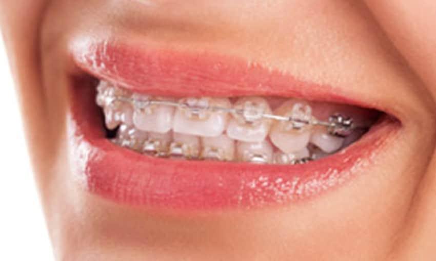 Teeth Grinding By Dr Premendra Goyal Lybrate