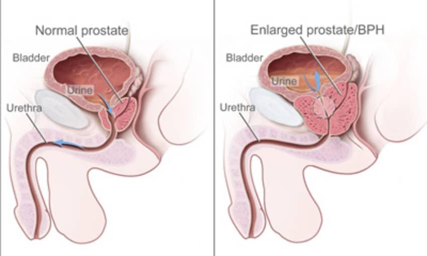 I prostatitis amit meggyógyítottam milyen nyomás alatt a prostatitis